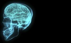 Brain Imaging | IFIS Publishing